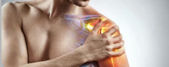 Reducing Shoulder Pain with Exercise